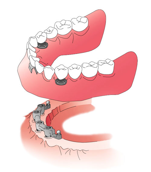 Dental Implants Upper and Lower Sections